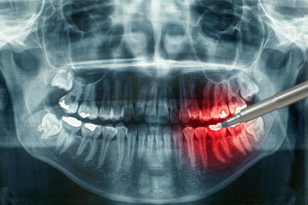 Панорамный снимок зубов белгород